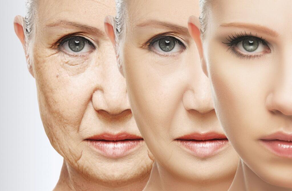 Anti-Ageing Treatment
