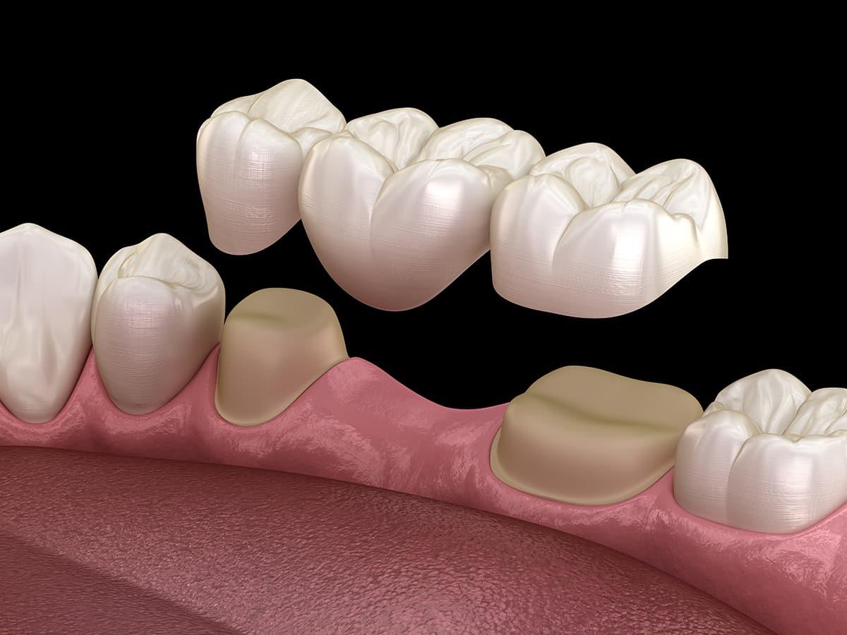 Dental implants vs. Implants