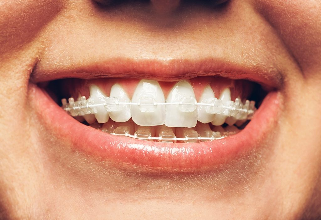 6-Month Braces For Fixing Crooked Teeth