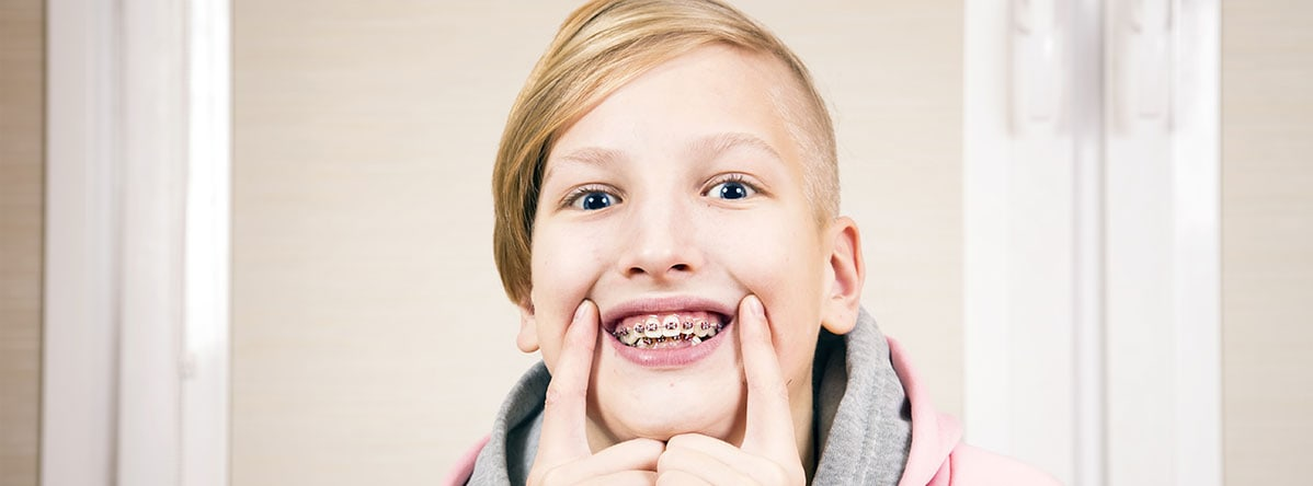 Child Need Braces