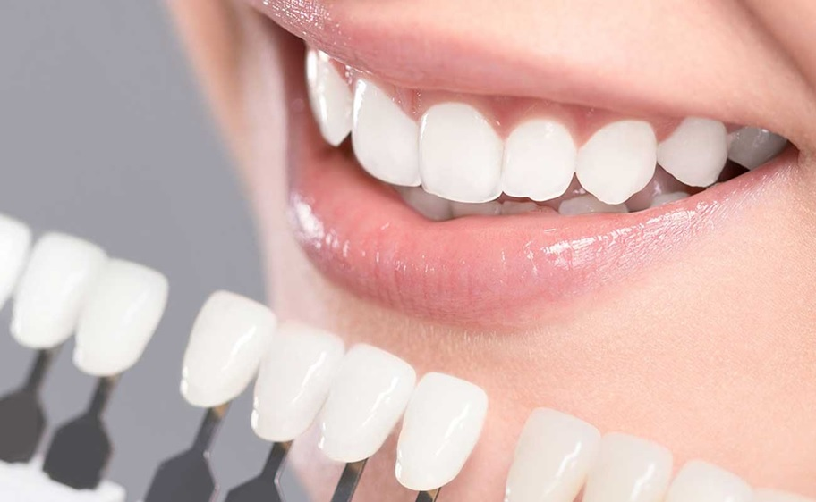 Things to Remember About Teeth Whitening